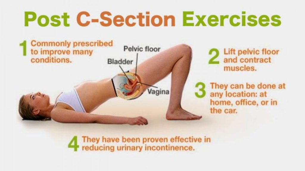 Post C section Exercises 1280x7201 1