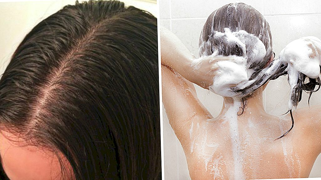 8 best shampoos for greasy hair 5
